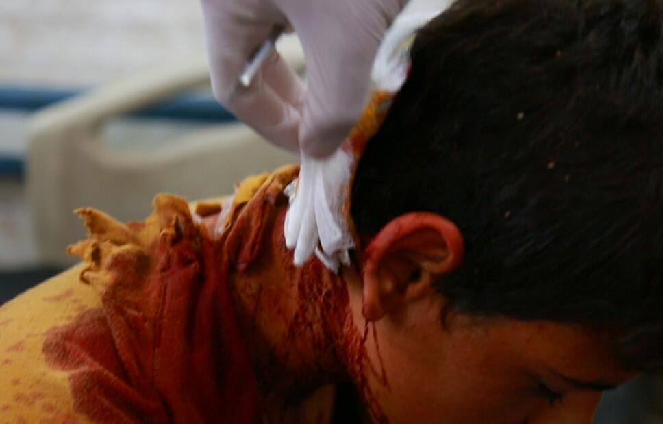 Injured boy receiving treatment after alleged coalition strike at Hit, Iraq April 20 2015 (
