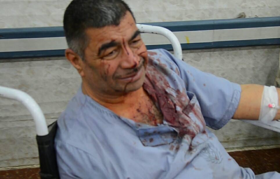 Hospitalised victim of alleged coalition airstrike near Mosul, April 20 2015 (Hunaa