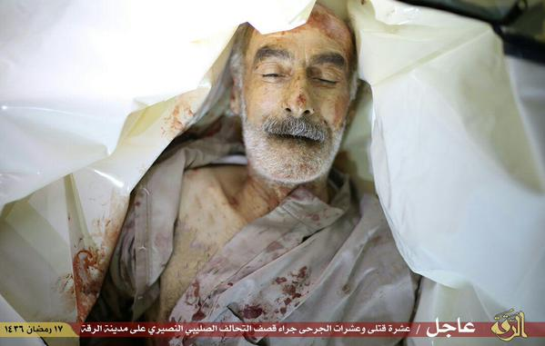 An elderly civilian male, reportedly a victim of a US airstrike on Raqaa, Syria July 4 2015 ((via Raqaa is Being Slaughtered Silently)