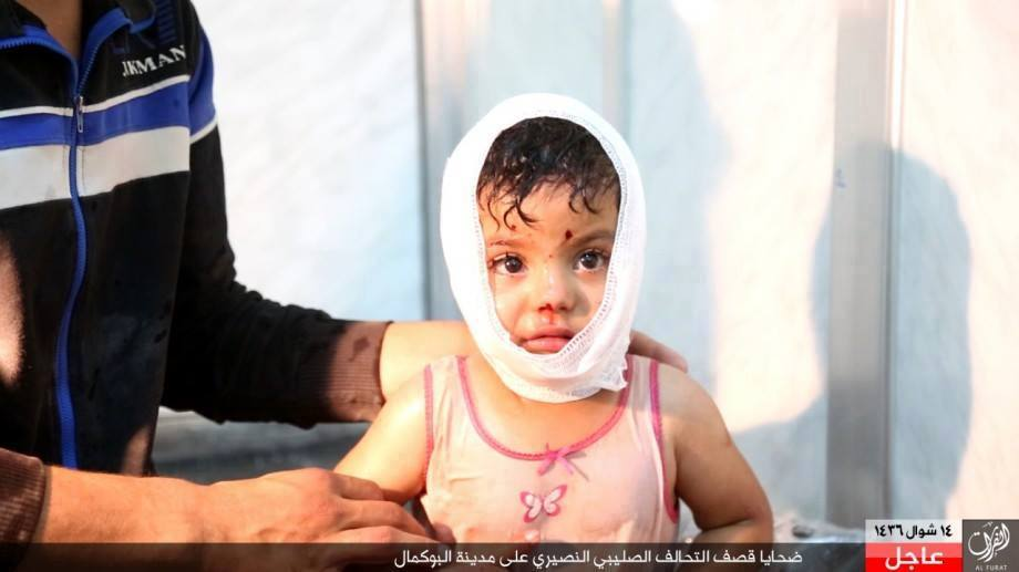 Child victim of a reported Coalition strike at Bukamal, Syria on July 30 2015 (via SN4HR)