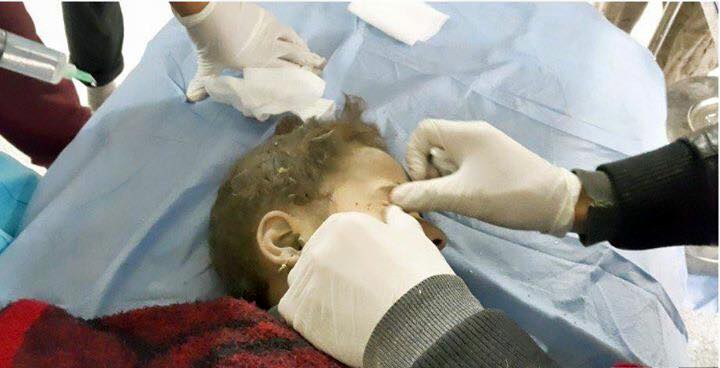 Child victim of reported Coalition strike at Ramadi December 3rd 2015 (via Al Anbar Motny)