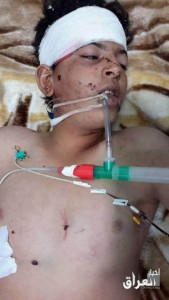 A child injured in alleged Coalition strike on Fallujah March 31st (via News of Iraq)