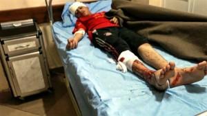 Boy injured in reported Coalition strike at Wadi hajar (via NRN News)
