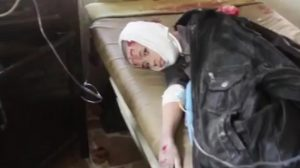 An injured child allegedly hit by Coalition airstrikes on Al Qa'im on January 29th.