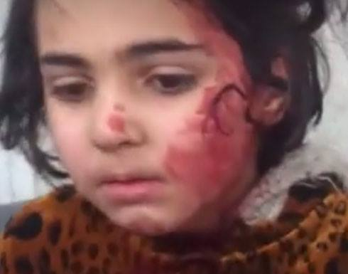 Iraqi Spring Media published an image of an injured child on February 21st, reporting that in the last 72 hours, 89 civilians - including 32 children - had died and 134 were injured in airstrikes and artillery shelling in west Mosul.